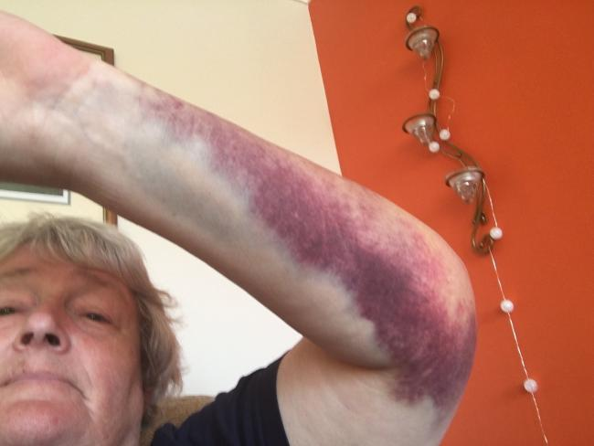 Sally Matson pictured with her severely bruised arm after falling in Cirencester Market Place