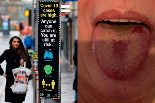 'Covid tongue' among symptoms meaning  20% of cases are missed, expert warns. (JPI Media)