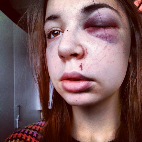 Pretty teen brutally beaten in Cirencester attack
